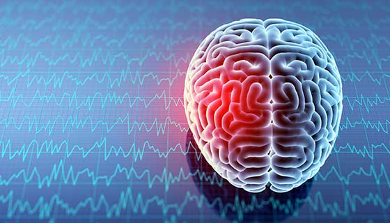 Understand Traumatic Brain Injury and How to File a Claim after an Accident